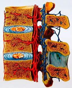 Занятия на Евминовом профилакторе - улучшает кровоснабжение спинного мозга и позвоночного столба
